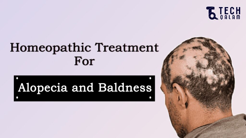 Homeopathic Remedies For Alopecia Hair Loss